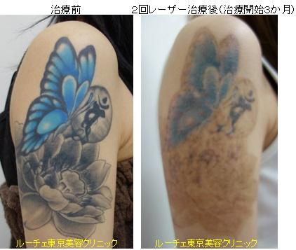 黒と青の腕タトゥー