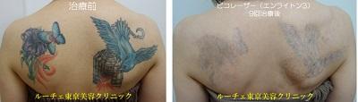 背中のカラフルタトゥーにピコレーザー治療をしています。