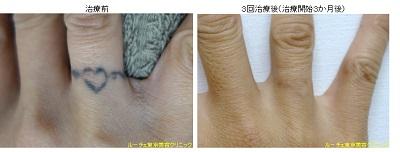 指のタトゥー除去