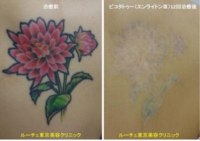 背中の花のカラフルタトゥーが消えてきています