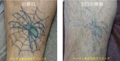 すね毛があるひざ下のタトゥー 緑と黒の途中経過