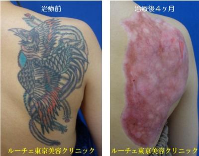 背中のカラータトゥーに削皮術を行いました