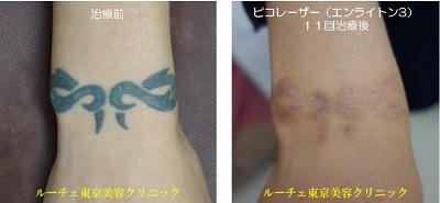 手首のタトゥーを11回ピコレーザーで治療しました