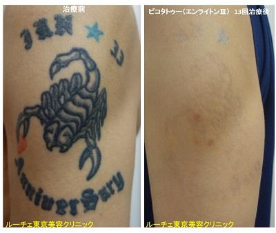 腕の黒・青・赤3色タトゥーが目立ちにくくなりました。