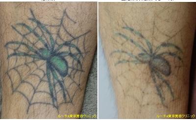 クモの2色タトゥー