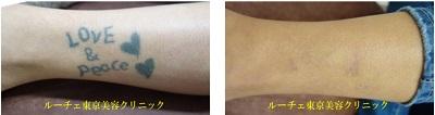 足首のタトゥー