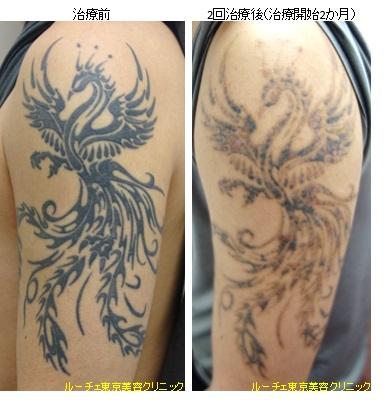腕の濃い黒タトゥー
