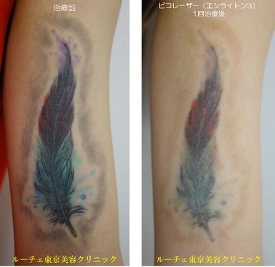 カラータトゥー腕の6色。緑・青・紫・黒・赤・黄緑