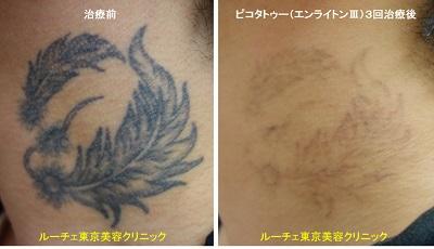 首の黒一色タトゥーが薄くなってきました 3回首黒