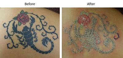 ピコレーザー(エンライトン)によるタトゥー除去をしています。