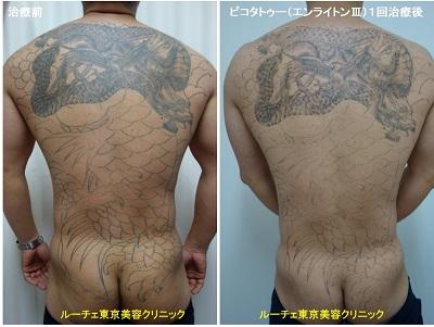 背中~臀部の広範囲タトゥーでも、1回目から効果実感できます