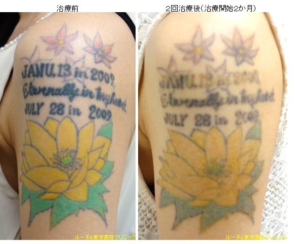 腕の4色カラフルタトゥー