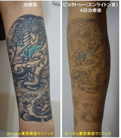 腕のカラータトゥー2色黒水色4回
