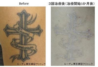 圧倒的症例数 ピコレーザー(エンライトン)によるタトゥー除去。治療3か月後
