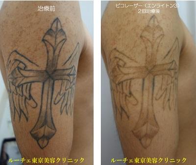 腕の黒一色タトゥーが2回の治療でかなり薄くなりました