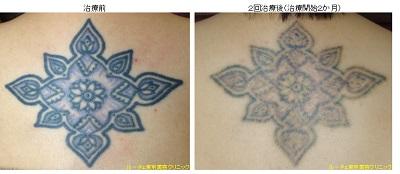 背中の2色タトゥー除去