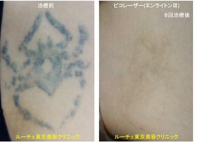 太もものクモのタトゥーにピコレーザーをしました