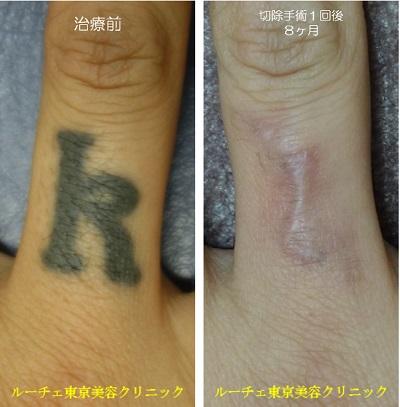 指のタトゥーを切除しました。
