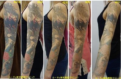 腕全体のタトゥー