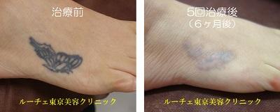 足の甲にあるタトゥー