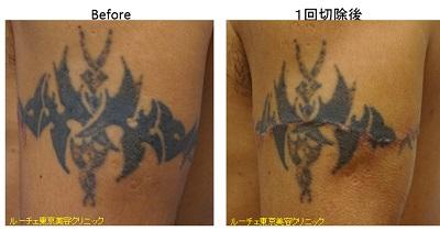 切除によるタトゥー除去1回目