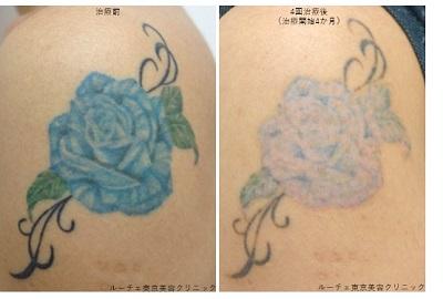青いバラのタトゥー