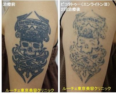 腕の黒一色タトゥー 2回
