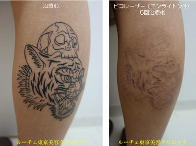 ふくらはぎのタトゥーに5度レーザー治療をしました