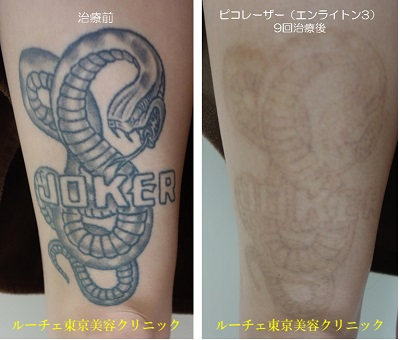 大腿前面のタトゥーです。9回治療しました