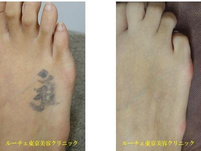 足自彫りタトゥー治療終了