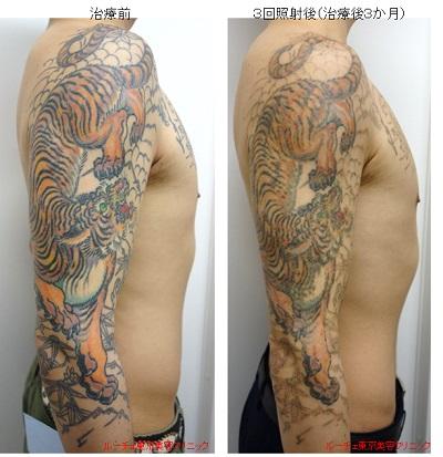 大きいタトゥー、マルチカラータトゥーこそピコレーザー(エンライトン)を検討してください。