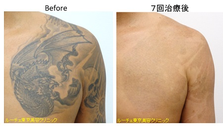 胸のタトゥー