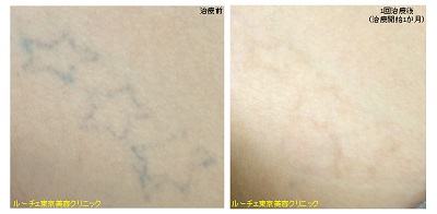お腹の黒の自彫りタトゥー。1回治療後