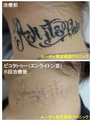 タトゥー除去ピコレーザー、6回、首、黒