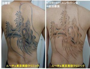 タトゥー除去ピコレーザー、1回、背中、黒