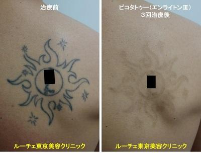 タトゥー除去ピコレーザー、3回、背中、黒
