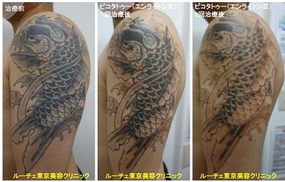 タトゥー除去ピコレーザー、2回、腕、黒、緑、オレンジ、黄色
