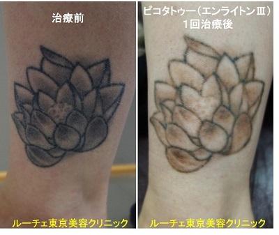 タトゥー除去ピコレーザー、1回、足、黒