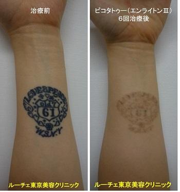 タトゥー除去ピコレーザー、6回、手首、黒