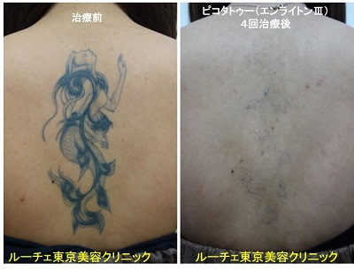 タトゥー除去ピコレーザー、4回、背中、黒