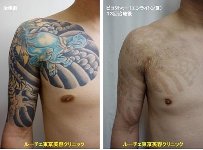 タトゥー除去ピコレーザー、13回、胸~腕、黒、水色、赤、黄色、オレンジ