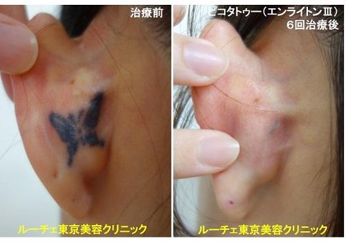 タトゥー除去ピコレーザー、6回、耳裏、黒
