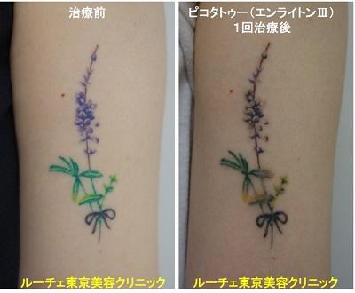 タトゥー除去ピコレーザー、1回、腕、黒、緑、黄緑、紫