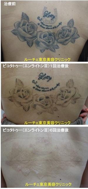 タトゥー除去ピコレーザー、6回、背中、黒