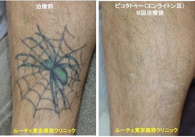 タトゥー除去ピコレーザー、足、黒、緑