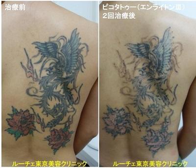 タトゥー除去ピコレーザー、4回、背中、黒、赤、緑、水色、オレンジ