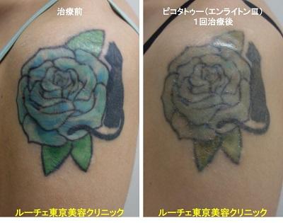 タトゥー除去ピコレーザー、1回、腕、黒、水色、緑