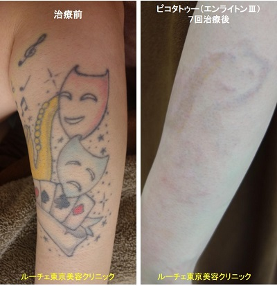 タトゥー除去ピコレーザー、7回、腕、黒、黄色、水色、赤