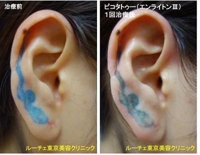 タトゥー除去ピコレーザー、1回、耳、青、赤
