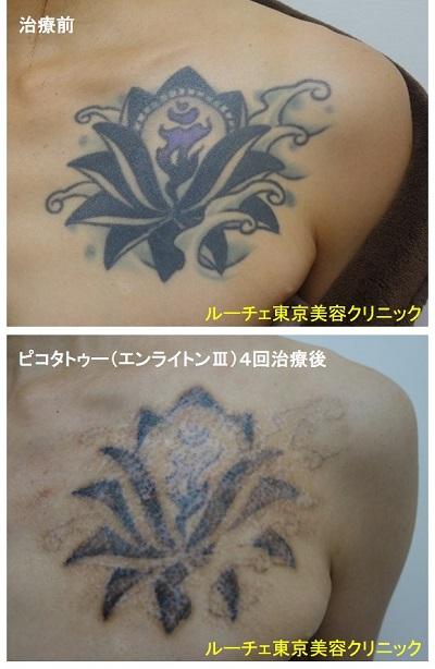 タトゥー除去ピコレーザー、4回、胸、黒、紫
